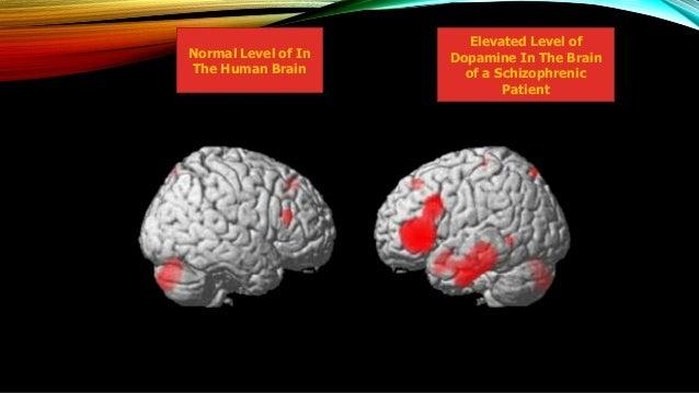 Neurobiology of schizophrenia