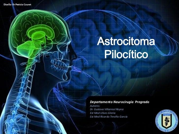 Astrocitoma      PilocíticoDepartamento Neurocirugía PregradoAutores:Dr. Gustavo Villarreal ReynaEst Med Ulises GloriaEst ...