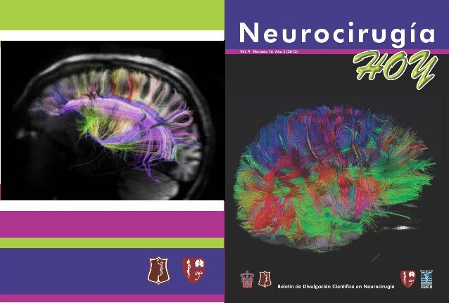 Neurocirugía Hoy, Vol. 4, Numero 16