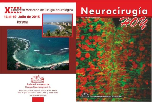 Neurocirugía Hoy, Vol. 4, Numero 14