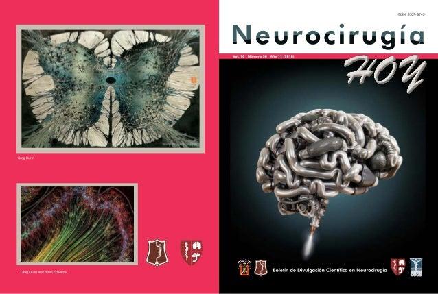 Neurocirugía Hoy, Vol. 10, Numero 30