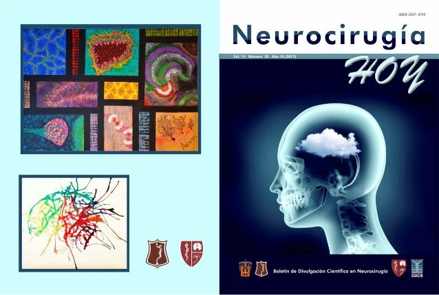 Neurocirugía Hoy, Vol. 10, Numero 29