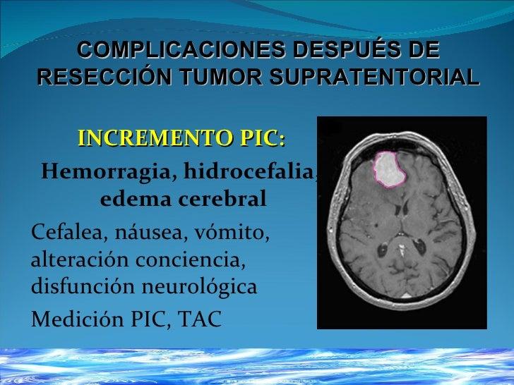 paciente Neurocrítico Slide 2