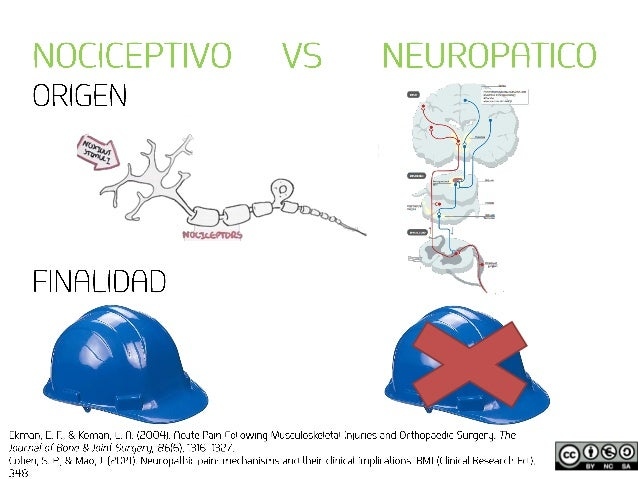 Neurodinámica y dolor neuropático