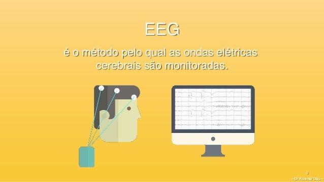 —Dr. Rosimar Dias— 9 é o método pelo qual as ondas elétricas cerebrais são monitoradas. —Dr. Rosimar Dias— EEG