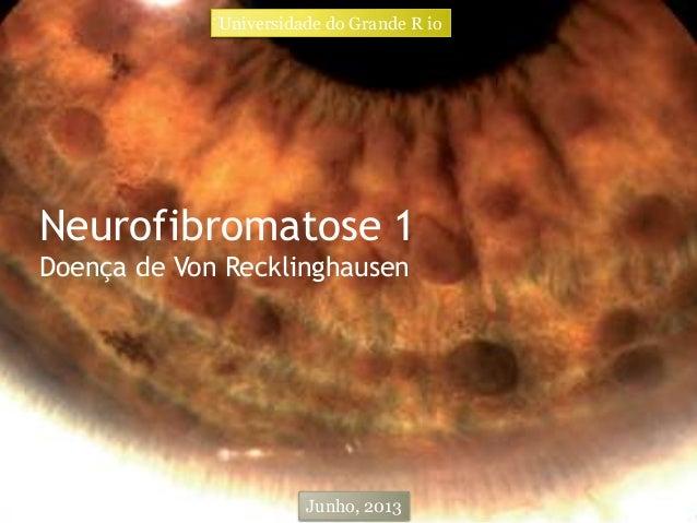 Neurofibromatose 1 Doença de Von Recklinghausen Universidade do Grande R io Junho, 2013