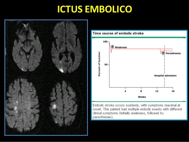 download Comparative Interpretation of CT and Standard