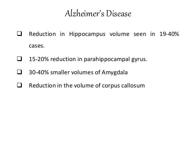 PET of Glucose Metabolism in normal vs. Alzheimer's Disease