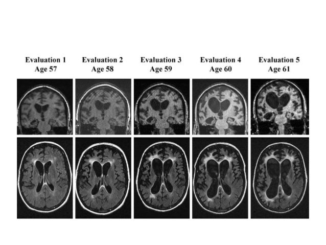 PET have shown- Increased activity (eg. Metabolism & blood flow) in  the frontal lobes, basal ganglia(sp. caudate), and...