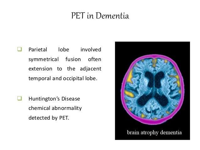 MRI in Schizophrenia  Childhood onset schizophrenia – smaller brain volume.  (As mentioned in earlier slides ) Dispropor...