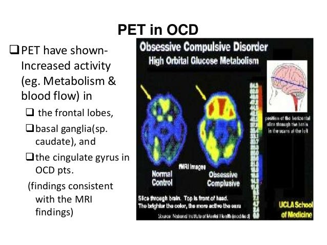 PET study in Schizophrenia  Hypofrontality in Schizophrenia patient.  Reduced glucose intake in left frontal region.  L...