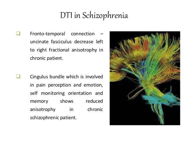 PET in Depression  Decreased anterior brain metabolism more pronounced in left side.  Relative increases activity in non...