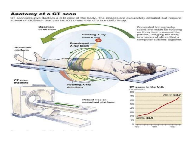 …Contd CT Scanners take a series of head X-ray pictures from all vantage points 360º around a patient's head The amount of...