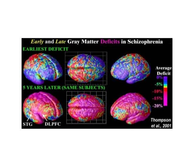 PET Scan ADHD vs. Normal White, Red, Orange = higher glucose metabolism Blue, Green, Purple = lower glucose metabolism