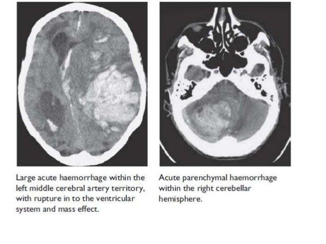 Neuroimaging by dr k k sharma
