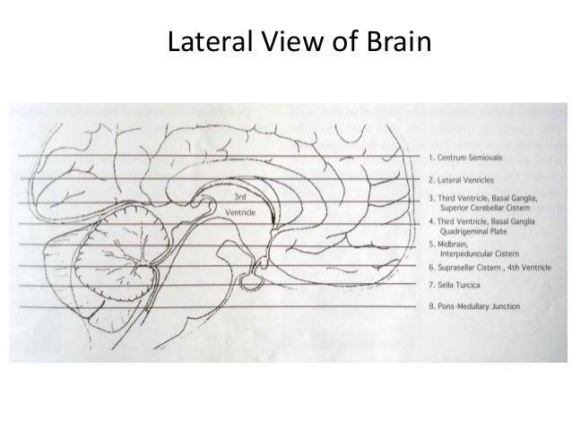 NORMAL ANATOMY……. A=Frontal Lobe, B= Frontal Bone (Superior Surface of Orbital Part), C= Dorsum Sellae, D=Basilar Artery E...