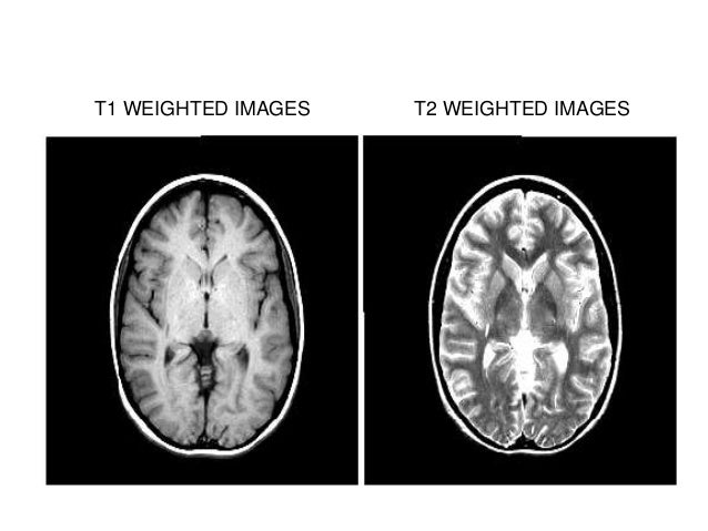 Contd.  MRI magnant are rated in Teslas Unit (T).  In clinical practice rang use from 0.3 to 2.0 Teslas.(max 9.4 T)  MR...