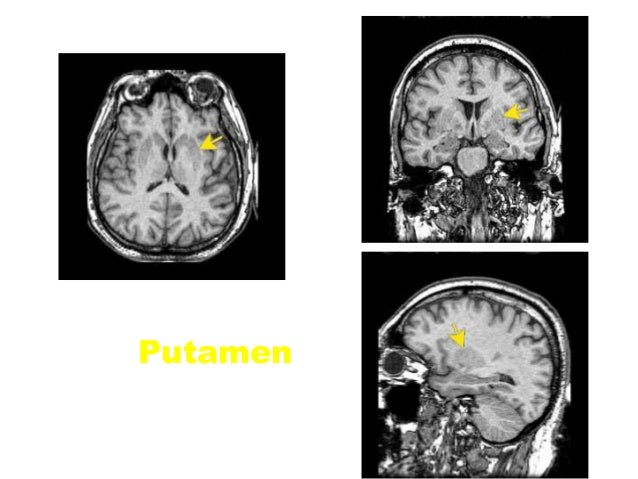 Functional MRI (fMRI)  fMRI is the indirect measurement of neural activity measuring the changes in local blood Oxygenati...