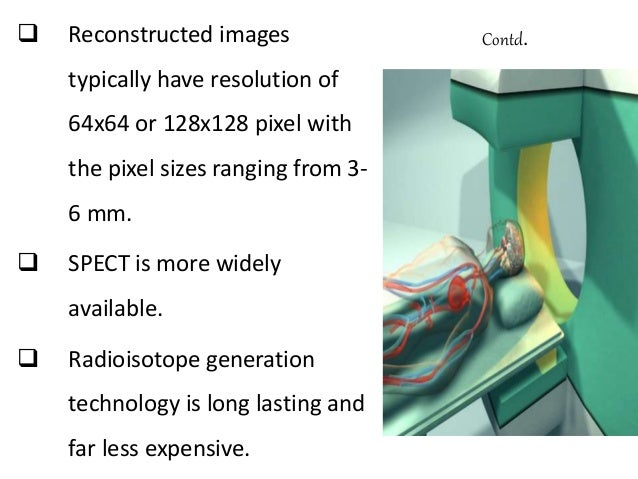  Patient is placed in the imaging scanner.  Modern PET system can provide 3D images of brain with resolution of the orde...