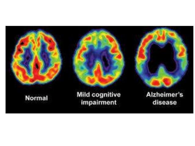 Alzheimer's Disease  Reduction in Hippocampus volume seen in 19-40% cases.  15-20% reduction in parahippocampal gyrus. ...