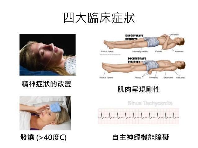 四大臨床症狀 精神症狀的改變 肌肉呈現剛性 發燒 (>40度C) 自主神經機能障礙