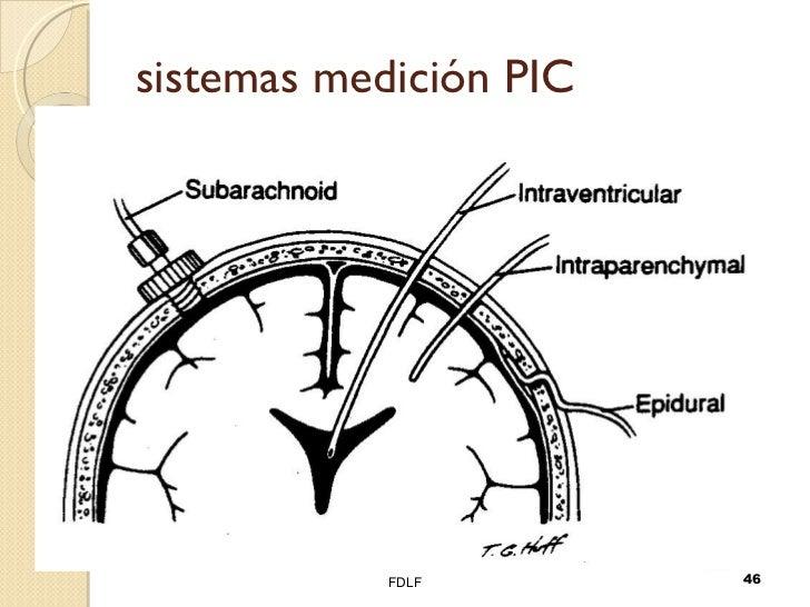 sistemas medición PIC FDLF