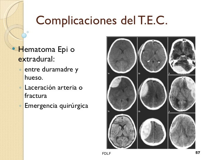 Complicaciones del T.E.C. <ul><li>Hematoma Epi o extradural: </li></ul><ul><ul><li>entre duramadre y hueso. </li></ul></ul...