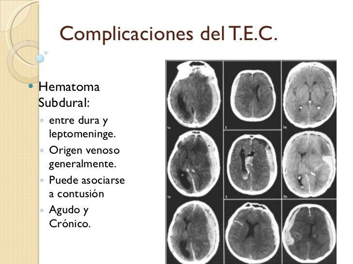 Complicaciones del T.E.C. <ul><li>Hematoma Subdural: </li></ul><ul><ul><li>entre dura y leptomeninge. </li></ul></ul><ul><...