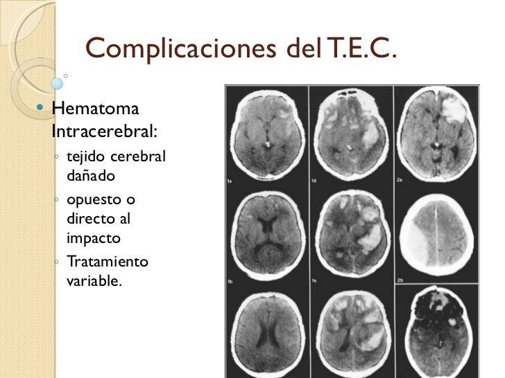 Complicaciones del T.E.C. <ul><li>Hematoma Intracerebral: </li></ul><ul><ul><li>tejido cerebral dañado </li></ul></ul><ul>...