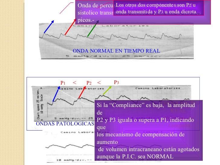 P 1  > P 2  > P 3 Onda de percusión, representa el latido arterial sistolico transmitido, siendo el más alto de los tres p...