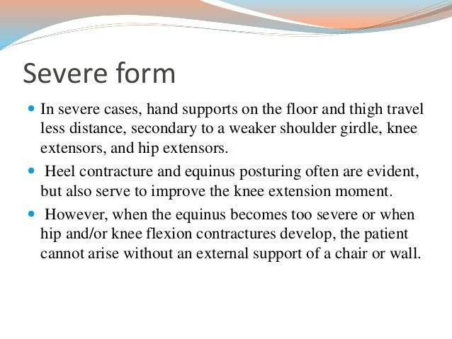 Neurological signs in medicine
