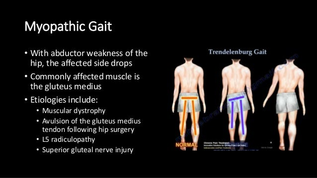 Causes Of Waddling Gait Related Keywords & Suggestions - Causes Of ...
