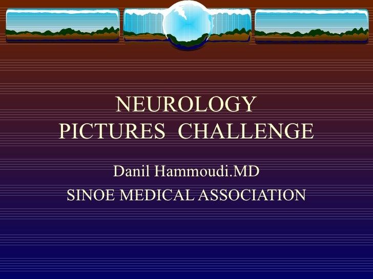 NEUROLOGY PICTURES  CHALLENGE Danil Hammoudi.MD SINOE MEDICAL ASSOCIATION