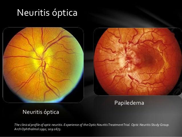 Resultado de imagen de neuromielitis óptica