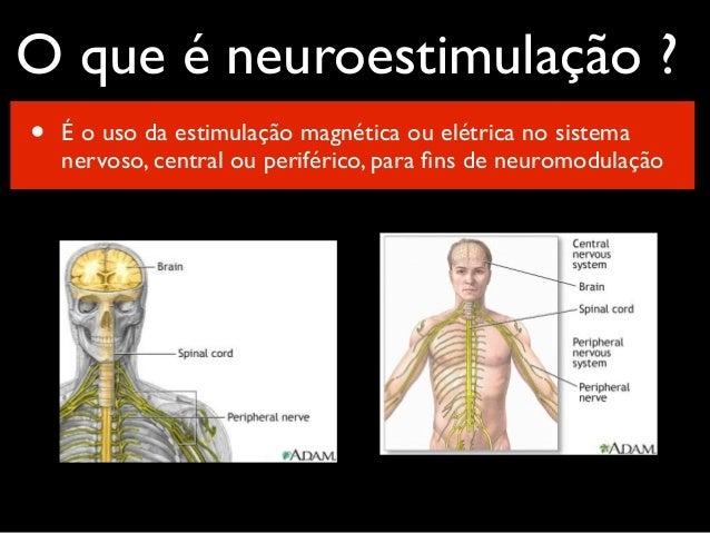 Neuromodulação Cerebral com Estimulação Magnética Transcraniana na Dor Crônica, Doença de Parkinson e AVC Slide 2