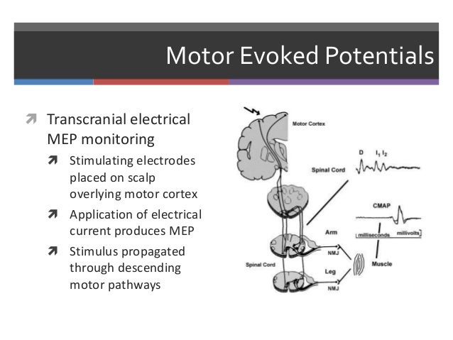 Neuromonitoring in anesthesia for Motor evoked potential monitoring