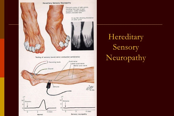 Neuropathy complete2 Hereditary motor neuropathy