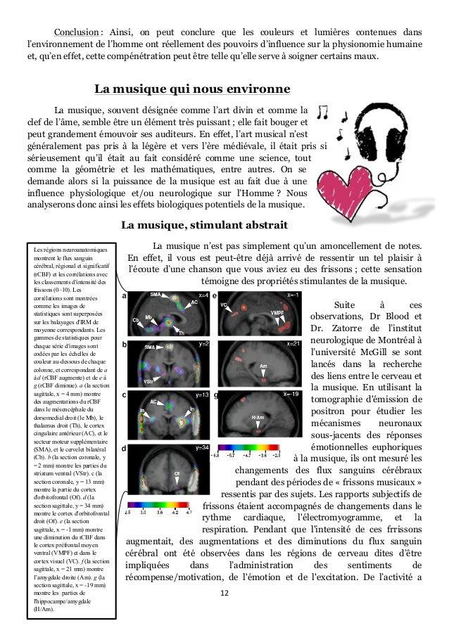 12      Les régions neuroanatomiques montrent le flux sanguin cérébral, régional et significatif (rCBF) et les corréla...