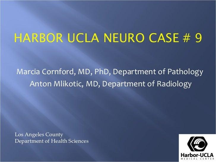 HARBOR UCLA NEURO CASE # 9Marcia Cornford, MD, PhD, Department of Pathology   Anton Mlikotic, MD, Department of RadiologyL...