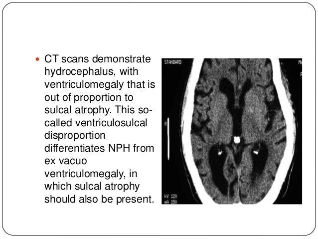 Neuroradiology in dementia