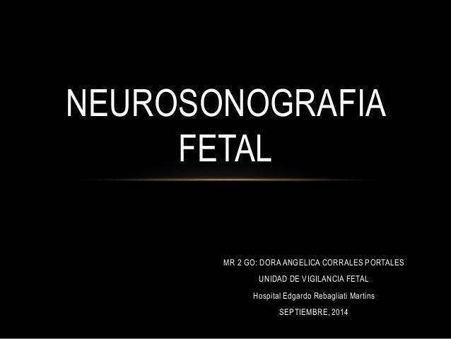 NEUROSONOGRAFIA  MR 2 GO: DORA ANGELICA CORRALES PORTALES  UNIDAD DE VIGILANCIA FETAL  Hospital Edgardo Rebagliati Martins...