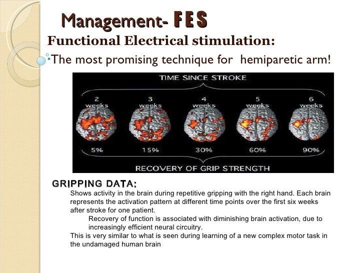 Neuro stroke rehabilitation
