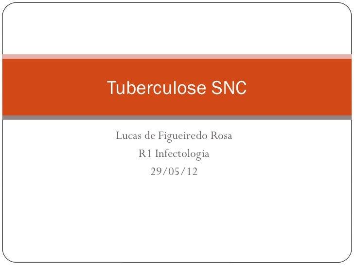 Tuberculose SNCLucas de Figueiredo Rosa    R1 Infectologia       29/05/12