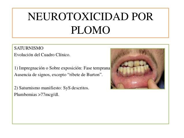 NEUROTOXICIDAD POR PLOMO SATURNISMO Evolución del Cuadro Clínico. 1) Impregnación o Sobre exposición: Fase temprana. Ausen...