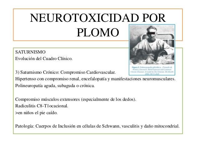 NEUROTOXICIDAD POR PLOMO SATURNISMO Evolución del Cuadro Clínico. 3) Saturnismo Crónico: Compromiso Cardiovascular. Hipert...