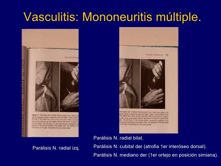 Vasculitis: Mononeuritis múltiple. Parálisis N. radial izq. Parálisis N. radial bilat.  Parálisis N. cubital der (atrofia ...