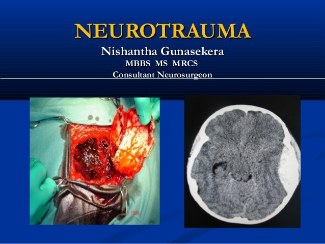NEUROTRAUMA Nishantha Gunasekera    MBBS MS MRCS  Consultant Neurosurgeon