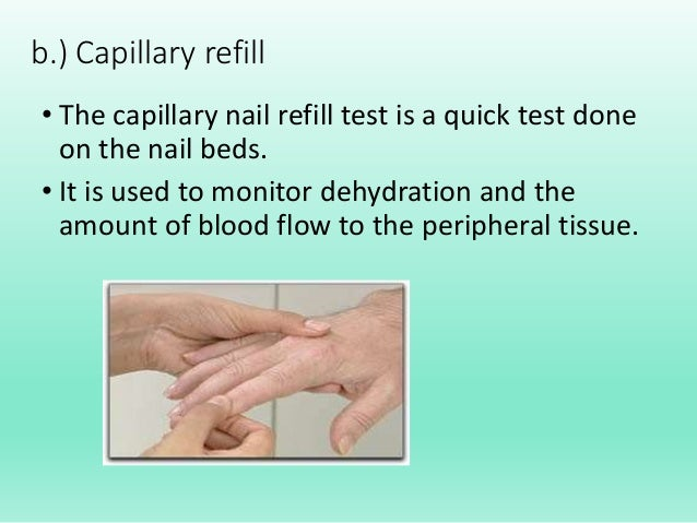 What is the capillary refill test?