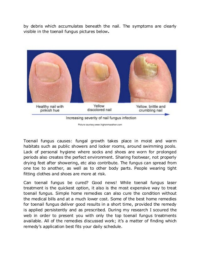 Never before seen toenail fungus remedy for Swimming pool fungus treatment