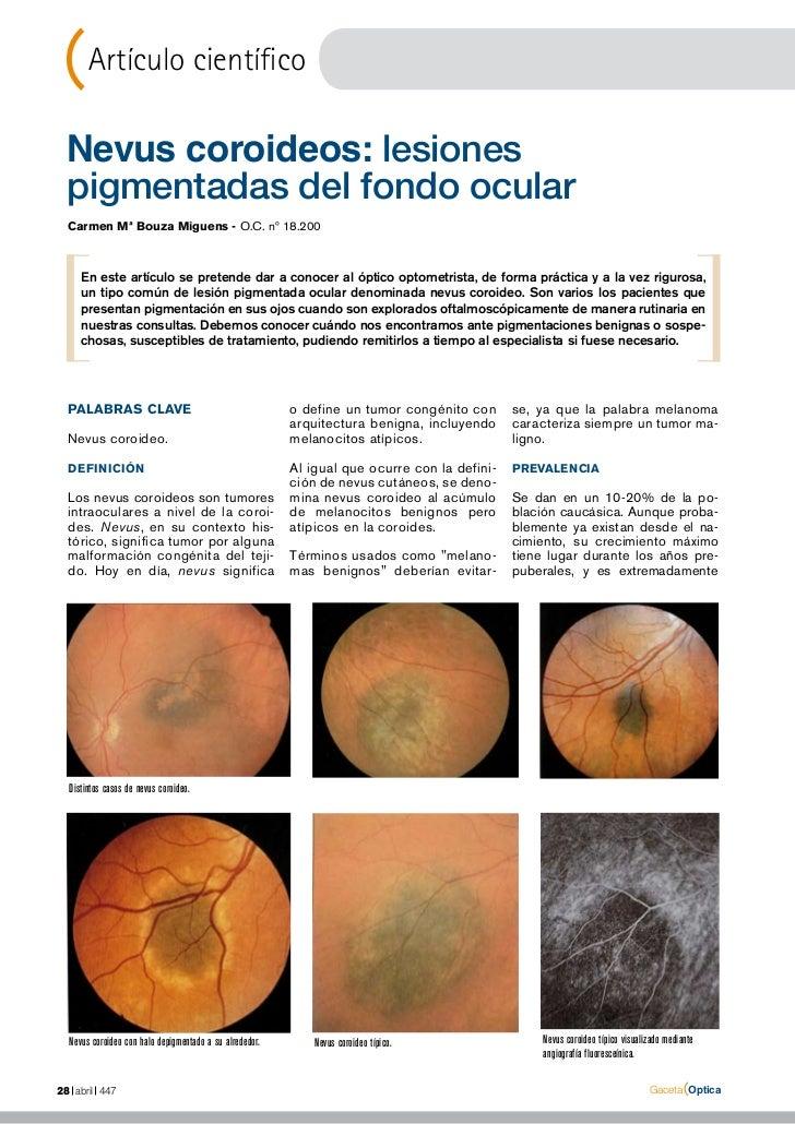 Artículo científico Nevus coroideos: lesiones pigmentadas del fondo ocular  Carmen Mª Bouza Miguens - O.C. nº 18.200     E...